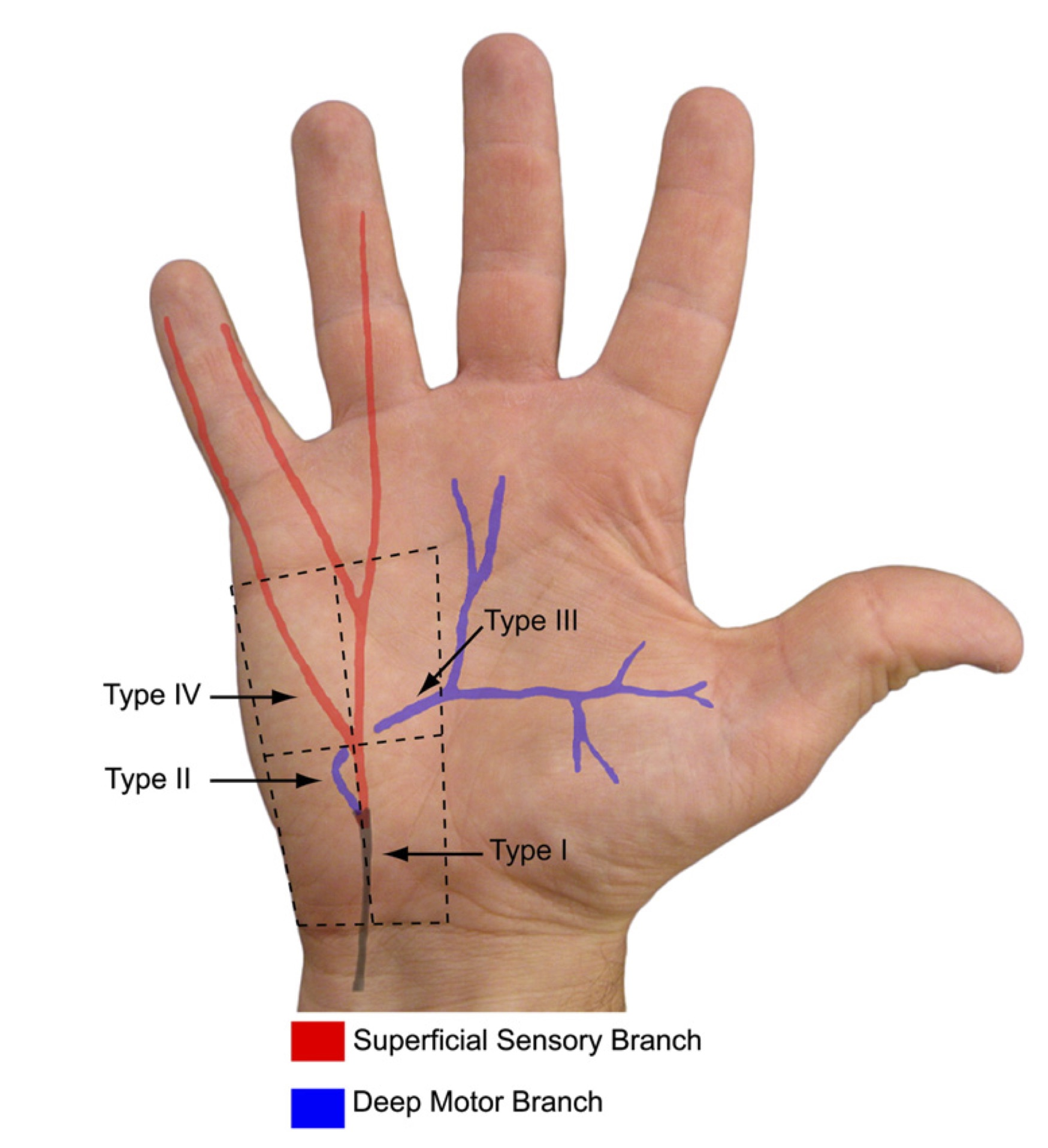 types of ulnar palsy