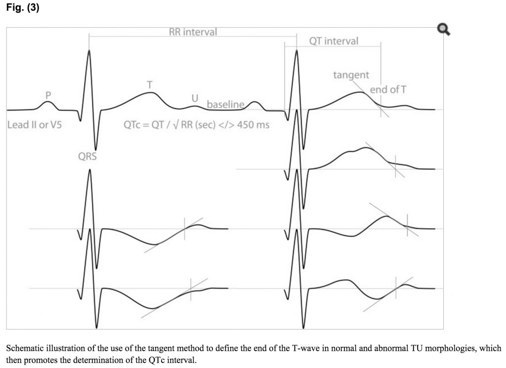 diagram showing how to measure the QT interval