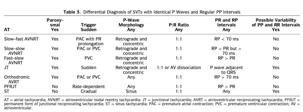 chart explaining SVT diagnosis with identical P waves and regular PP intervals