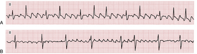 Comparing atrial flutter with a variable AV block versus coarse atrial fibrillation.
