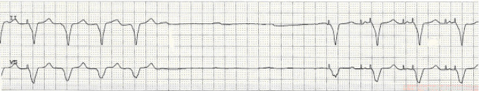 pacemaker failure to fire ecg strip