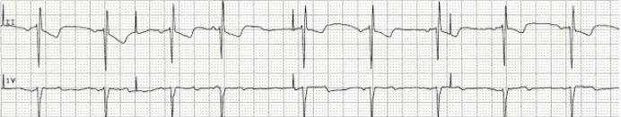 pacemaker failure to sense ecg strip