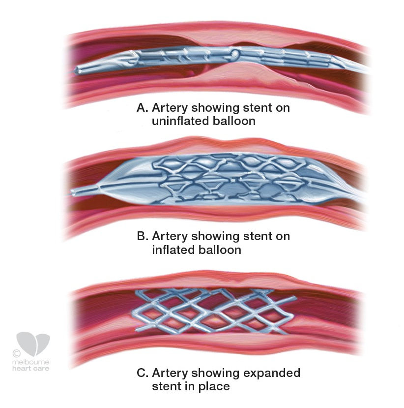 coronary stent diagram