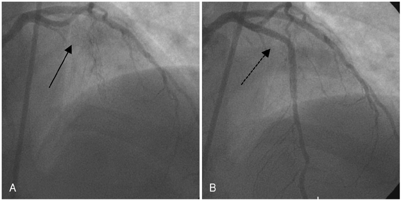 occluded artery after stent
