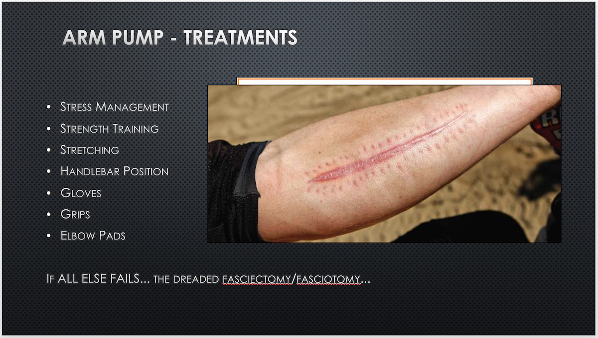 scar from fasciotomy